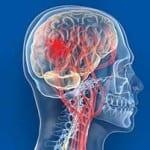 Derrame cerebral