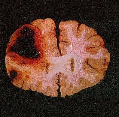 Sangramento cerebral causado por trombocitopenia